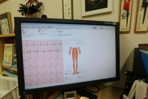 動脈硬化検査画面