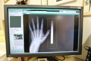 骨密度測定画面